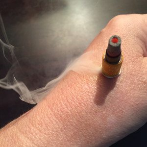 Example of moxibustion on a patient's left hand.
