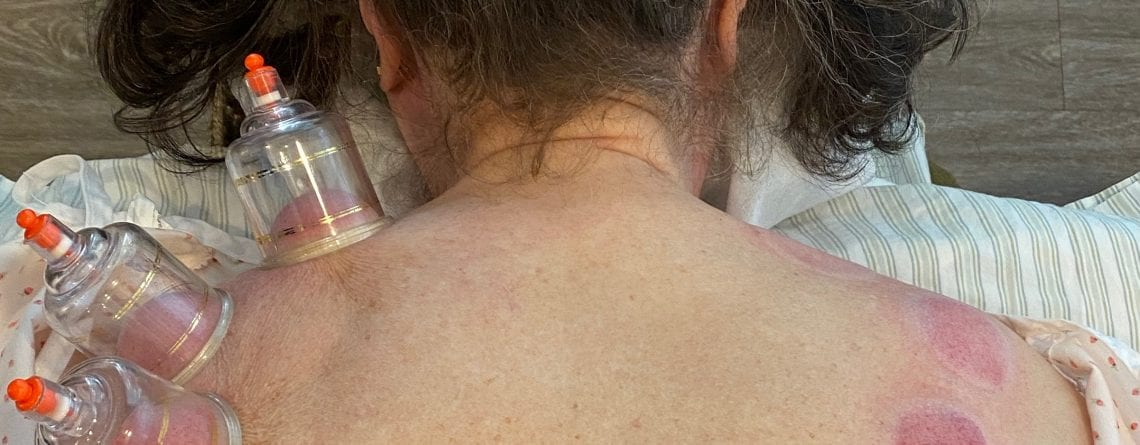 Cupping + Acupuncture for the Change of Seasons
