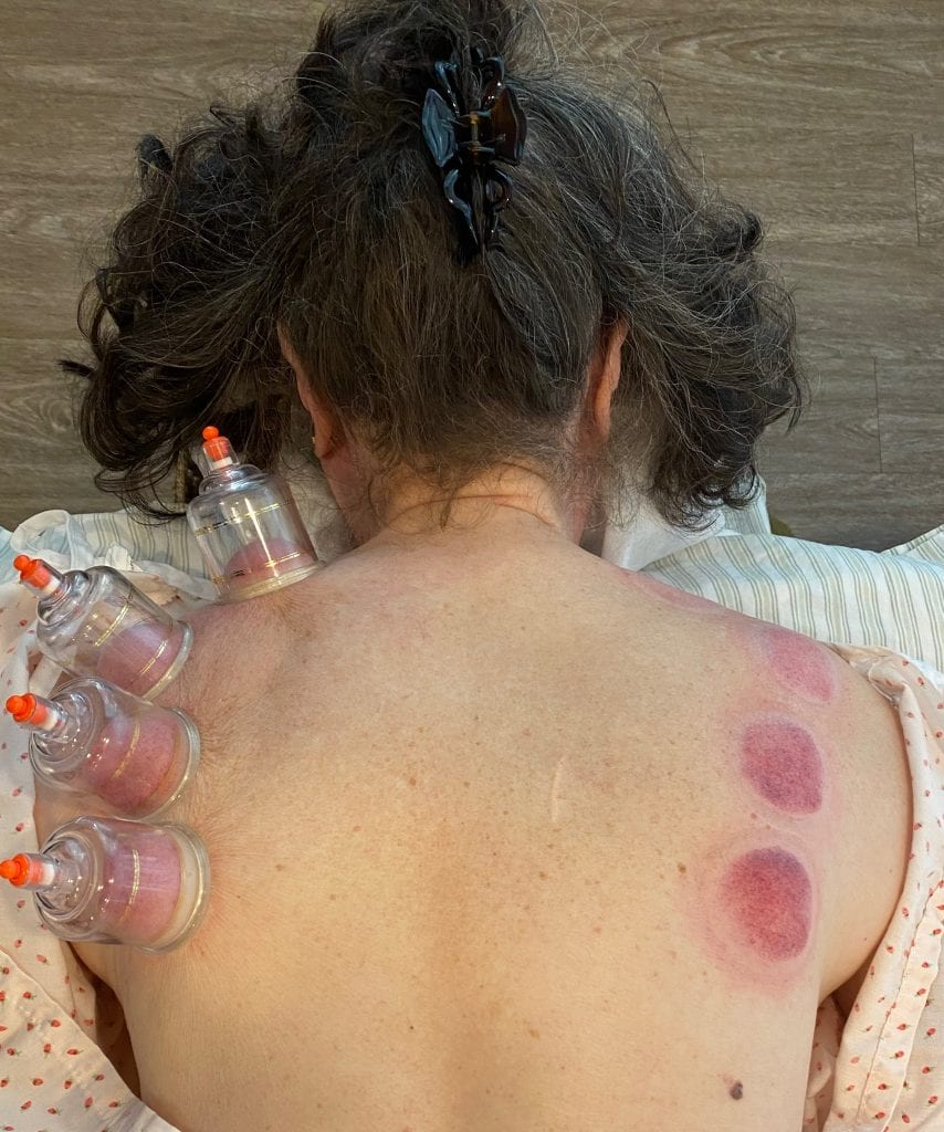 a woman has cups on her left upper back, and cupping marks on her right side